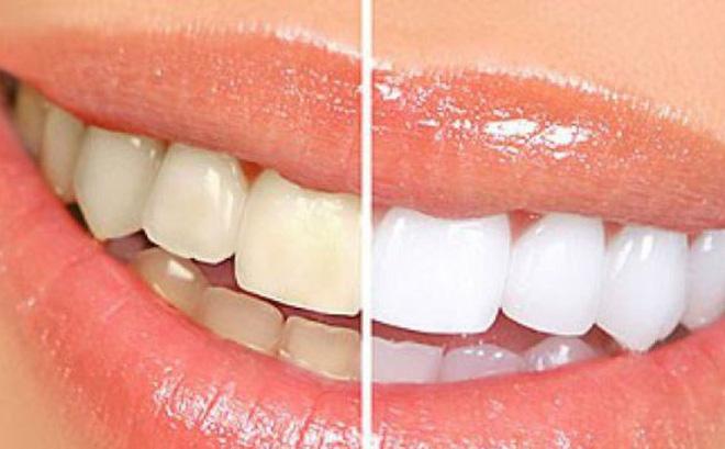 Chanh làm răng trắng hơn