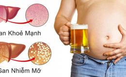 Những nguy cơ gây ra gan nhiễm mỡ thường ngày mà ít ai biết| Đừng làm nếu như không muốn sức khỏe ngày càng đi xuống