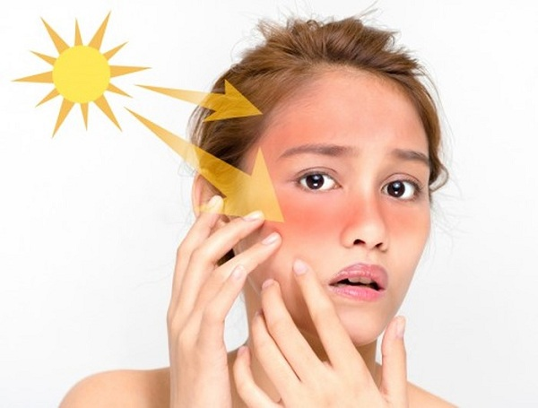 Lười thoa kem chống nắng khiến da bị tổn thương và kém độ đàn hồi