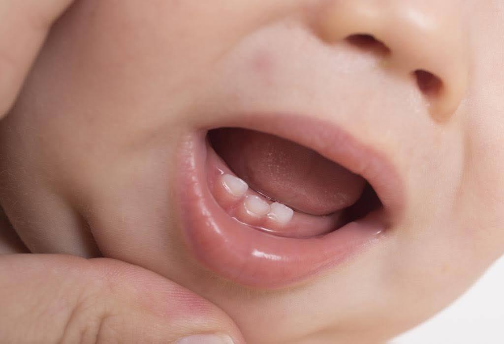 trẻ sơ sinh mọc răng nanh trước