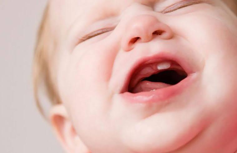 trẻ mọc răng nanh hàm trên trước răng cửa