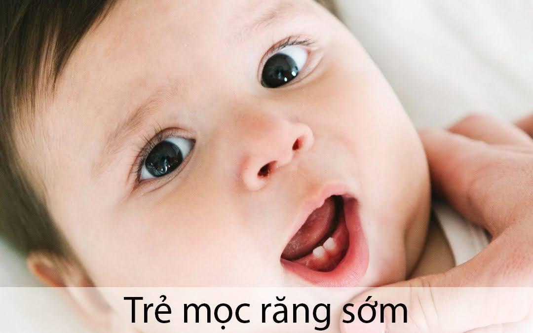 trẻ mọc răng sớm có tốt không